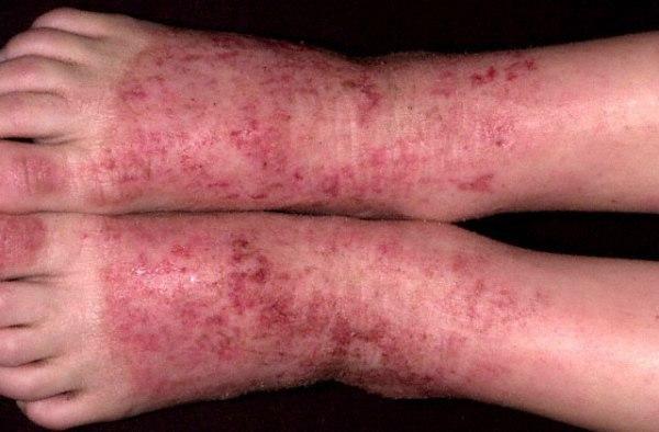 Как выглядят аллергические высыпания?