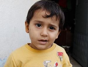 Причины появления недуга у детей