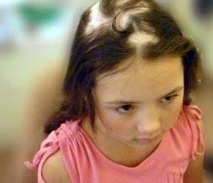 Алопеция у детей