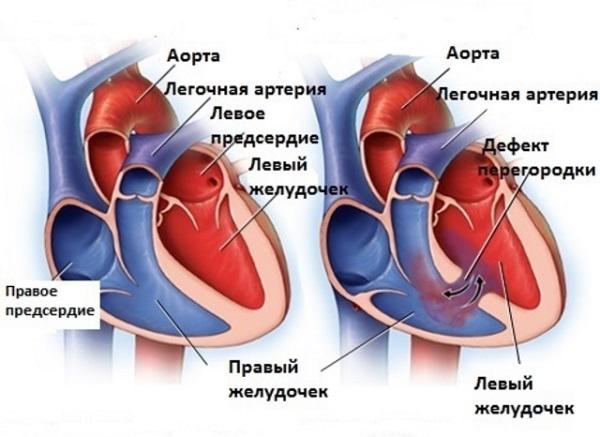 Аномалия межжелудочковой сердечной перегородки