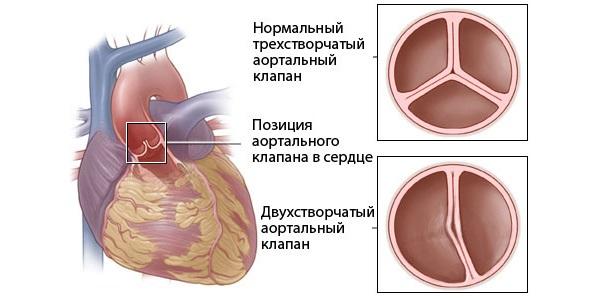 Двустворчатый аортальный клапан у ребенка