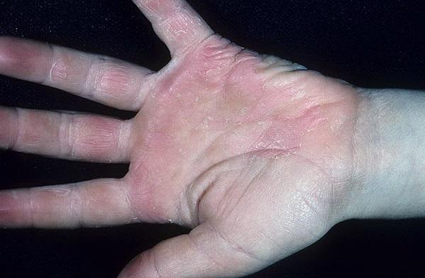 Клиническая картина и симптомы