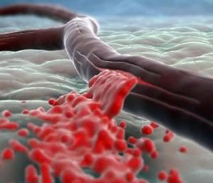 Описание и характеристика недуга