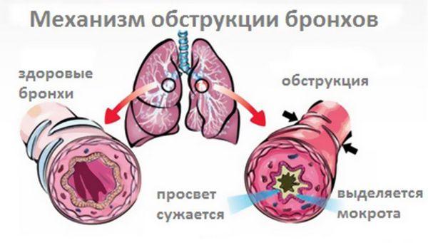 Понятие и характеристика недуга