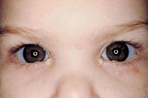 Клинические проявления и симптомы
