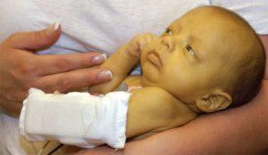 Гемолитическая болезнь новорожденных: клинические рекомендации
