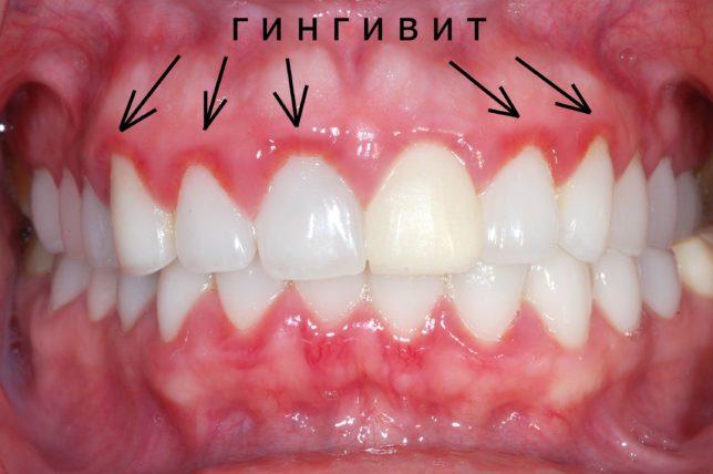 Что такое гингивит десен?