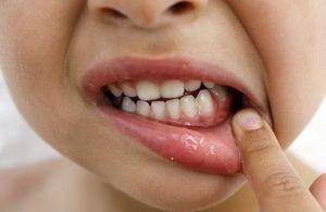 Гингивит у детей: симптомы и лечение