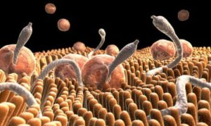 Как лечить глисты у детей?