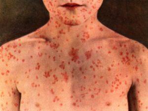 Симптомы, признаки и клиническая картина