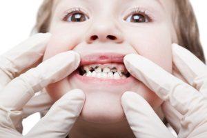 Могут ли болеть молочные зубы малыша?