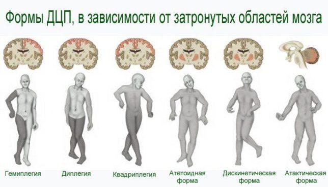 Классификация и формы патологии