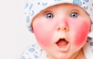 Экссудативно-катаральный диатез у детей