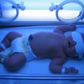 Физиологическая желтуха новорожденных