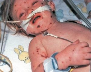 Менингококковая инфекция у детей - симптомы
