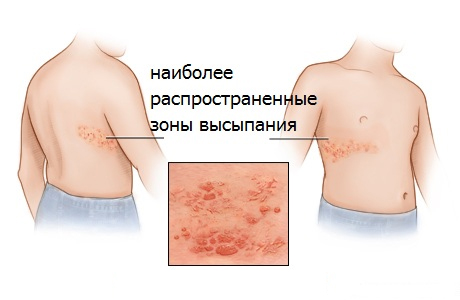 Локализация высыпаний на теле