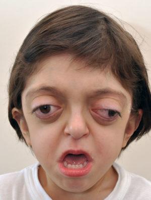 Чем опасна болезнь для ребенка?