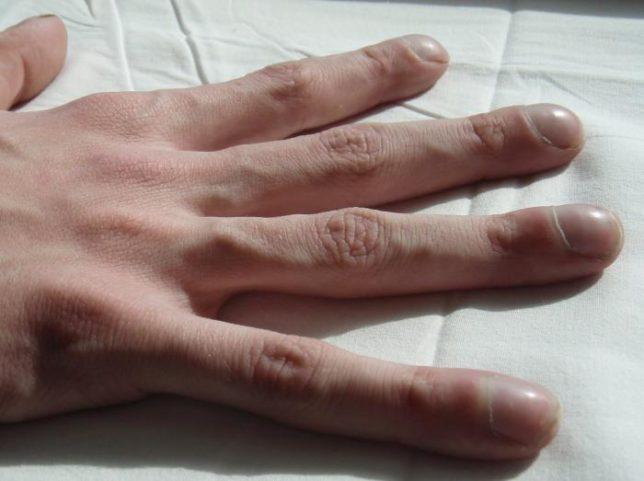 Симптомы, признаки, клиническая картина