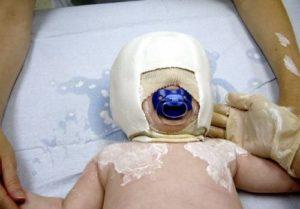 Хирургическое вмешательство - показания