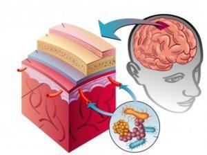 Понятие и особенности недуга