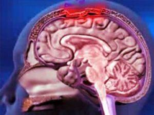 Характеристика и особенности заболевания
