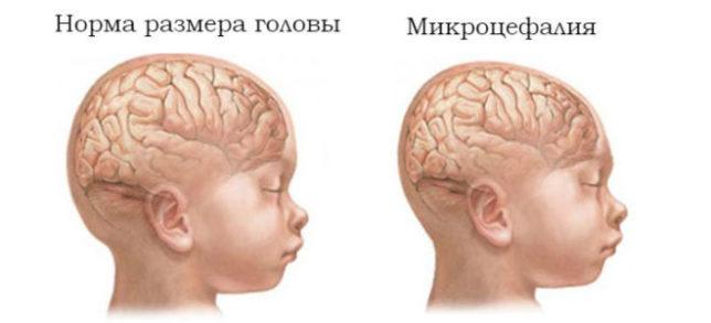 Как определить наличие болезни у младенца?