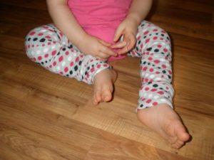 Синдром коксита у ребенка