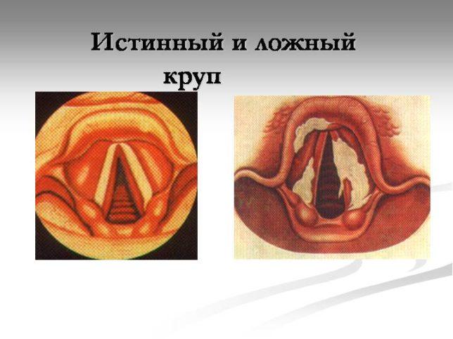 Формы и стадии заболевания