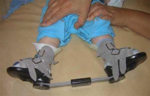 Правильная ортопедическая обувь
