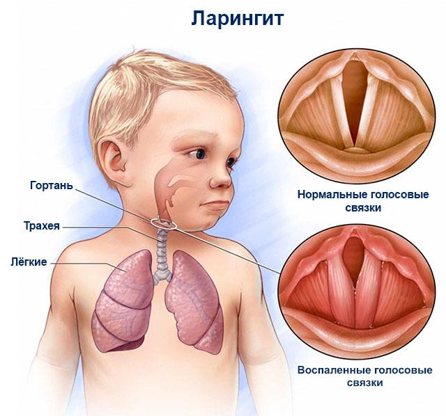 Понятие и характеристика заболевания