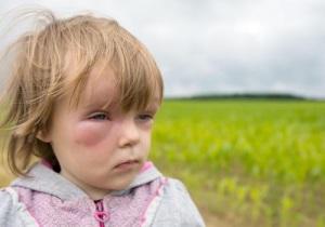 Отек Квинке - симптомы у детей