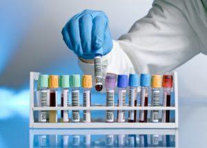 Диагностика и лабораторные анализы