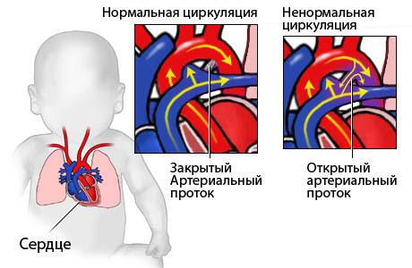 Общая характеристика заболевания