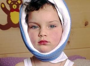 Паротит у детей - симптомы