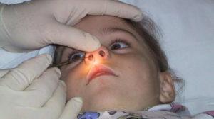 Консервативное и хирургическое лечение в носу