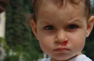 Виды кровоизлияний из носа