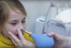Продувание слуховых труб ребенку по Политцеру