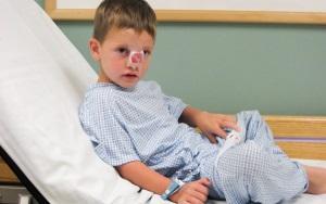 Перелом носа у ребенка - симптомы