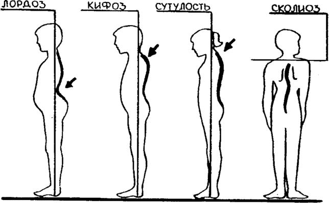 Классификация и разновидности патологии