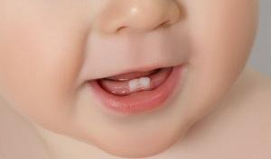 Прорезывание зубов у детей - последовательность