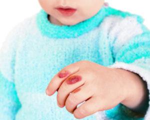 Как быть, если у ребенка появились волдыри или поднялась температура?