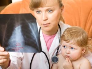 Синдром Картагенера у детей