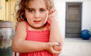 Мокнущая рана у ребенка - лечение
