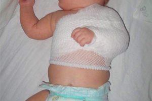 Травматические повреждения мягких тканей новорожденного