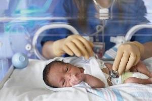 Респираторный дистресс синдром новорожденных