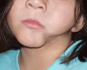 Склеродермия у детей
