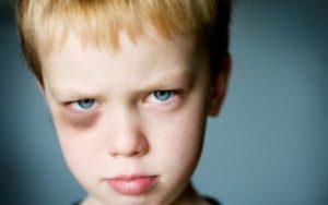 Как лечить синяк от удара у мальчика?