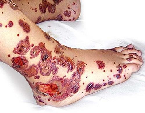 Тромбоцитопеническая пурпура у детей фото