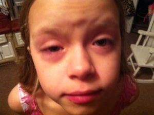 Чем опасна аллергическая реакция для малыша?