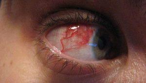 Симптомы и проявления заболевания